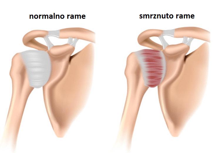 bolno rame - normalno i smrznuto rame - blog - Figura