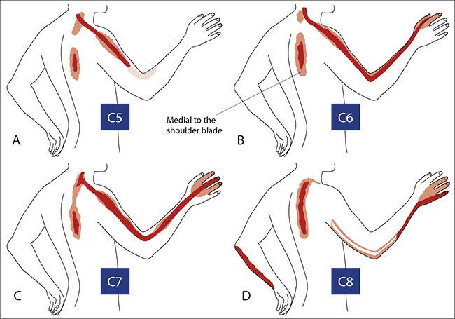bolni vrat – manualni testovi - Figura